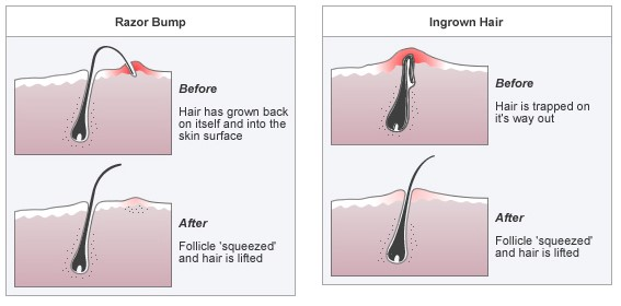 ingrown hair and razor bump